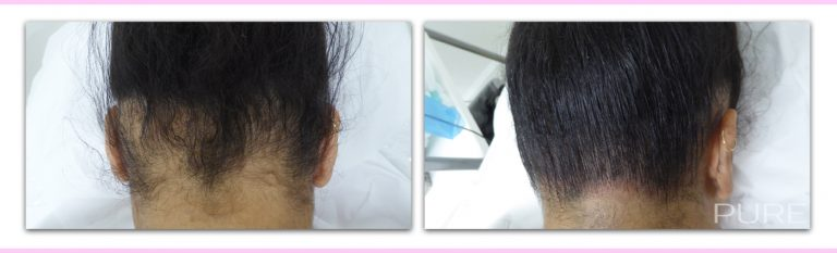 Female Scalp Micropigmentation