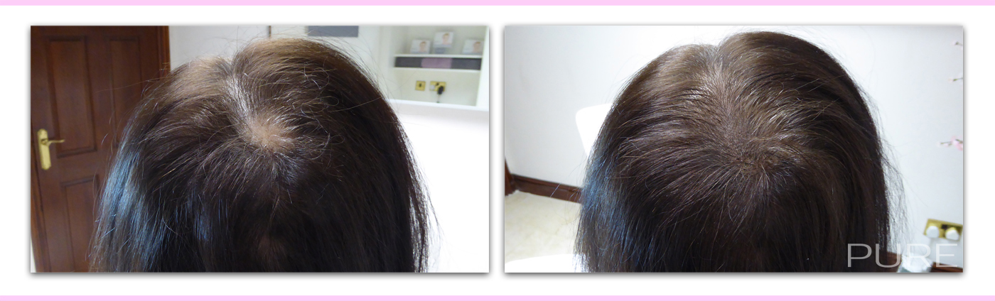female hair loss scalp micro pigmentation