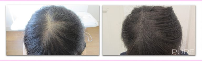 scalp micropigmentation for female hair loss